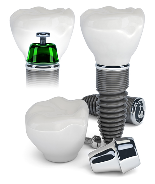 Implant Dentist in St James