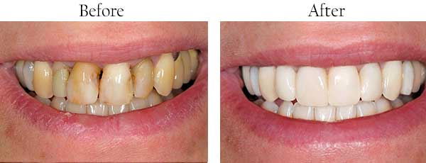 St James Before and After Teeth Whitening