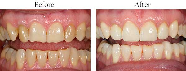 Nesconset Before and After Invisalign